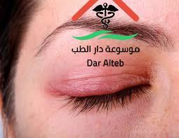 علاج تورم العين والاسباب المؤدية الي الورم