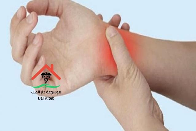 علاج التهاب الاعصاب بالاعشاب