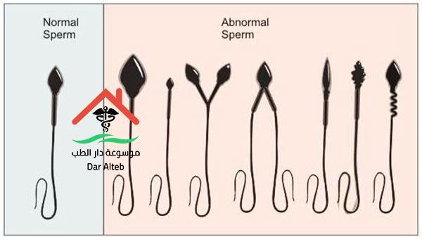 Photo of علاج تشوهات الحيوان المنوي وما هي أسباب هذه التشوهات