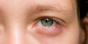 علاج تورم واحمرار العين