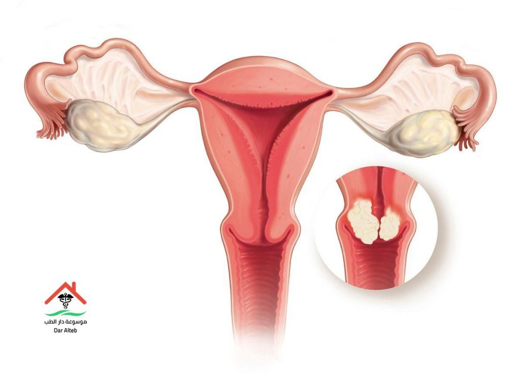 علاج سرطان الرحم