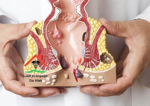افضل علاج للبواسير الملتهبة بدون جراحة مجرب