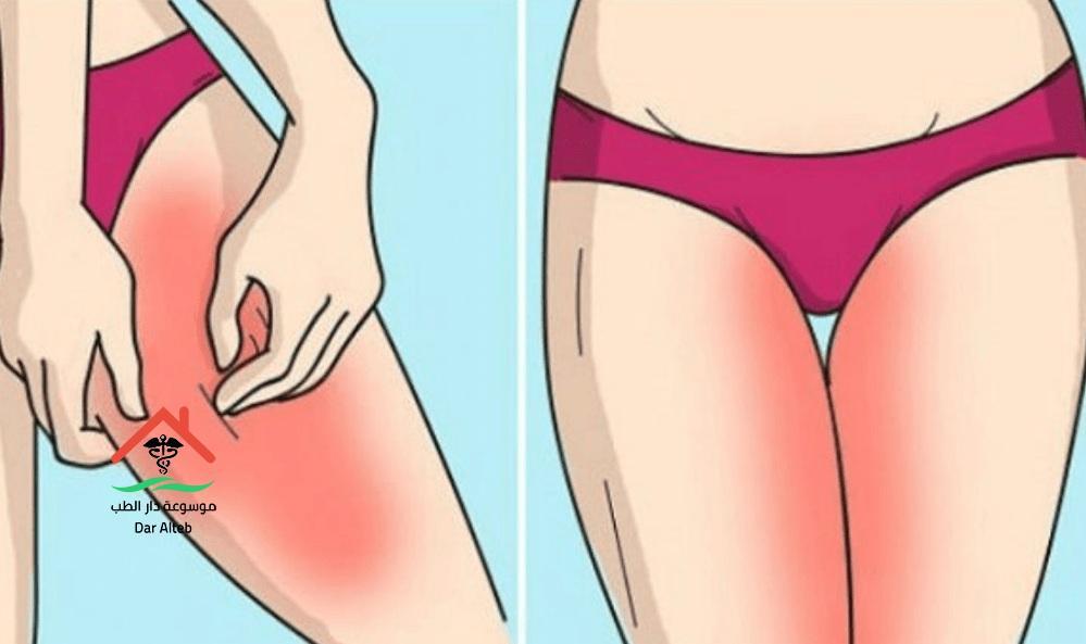 علاج التسلخات في المناطق الحساسة