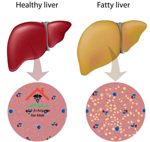 Photo of طرق علاج دهون الكبد وأعراض الإصابة به