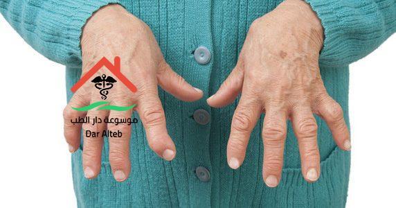 Photo of مرض الروماتويد أسبابه وأعراضه وطرق العلاج