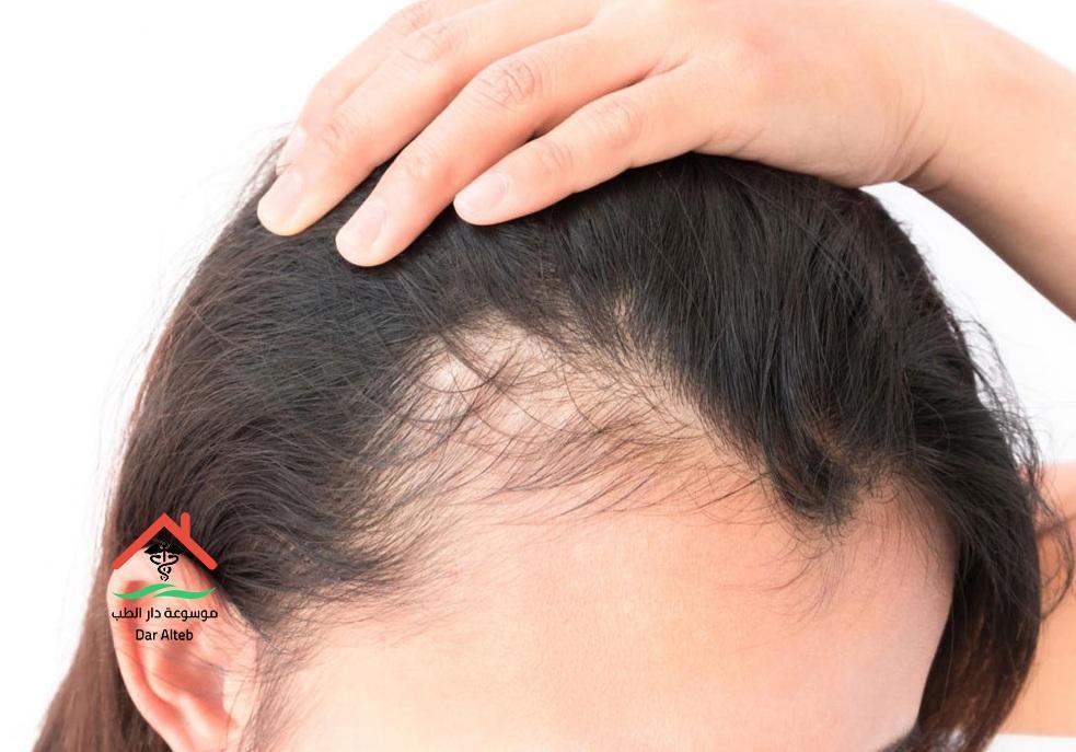 علاج تساقط الشعر الشديد عند النساء