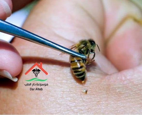 فوائد سم النحل العلاجية
