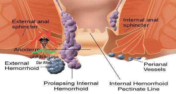 علاج البواسير بالثوم