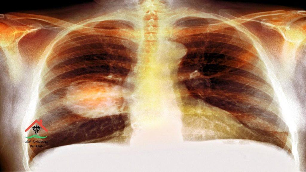 اعراض سرطان الرئة وطرق علاجه