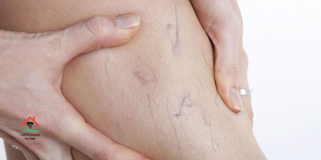 Photo of علاج دوالي الساقين بالاعشاب والأطعمة المفيدة في علاجها
