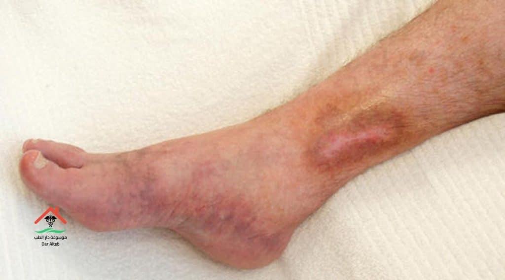 اعراض جلطة القدم وطرق العلاج