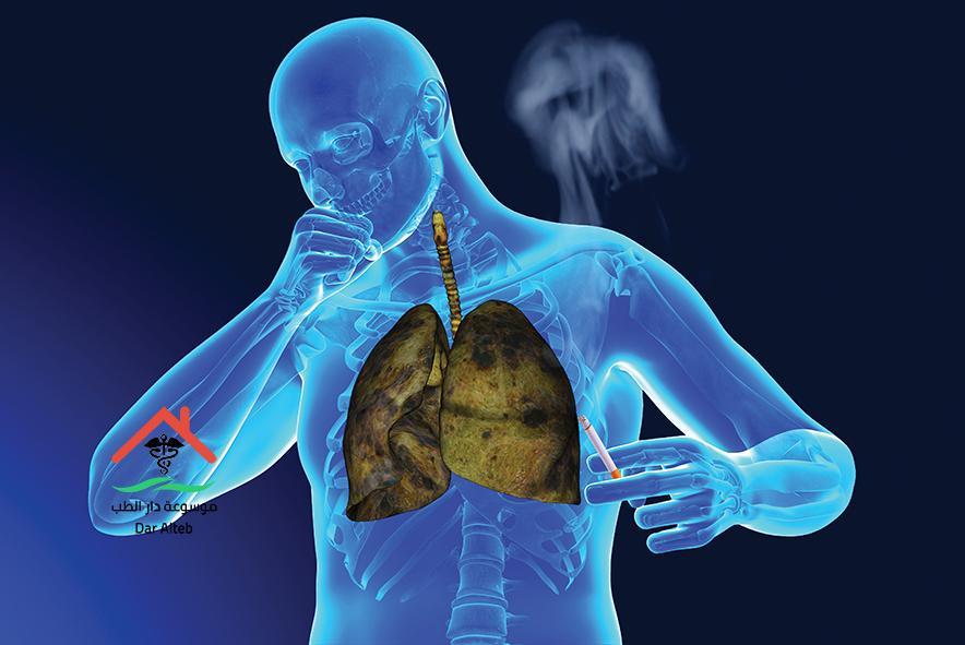 Photo of أعراض سرطان الرئة وما هي أشهر أسباب الإصابة به