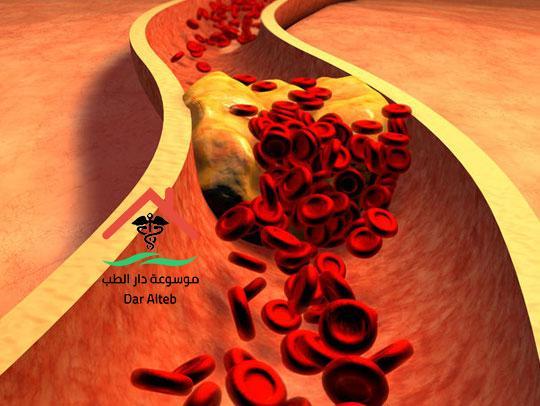 علاج التسرب الوريدى بالاعشاب