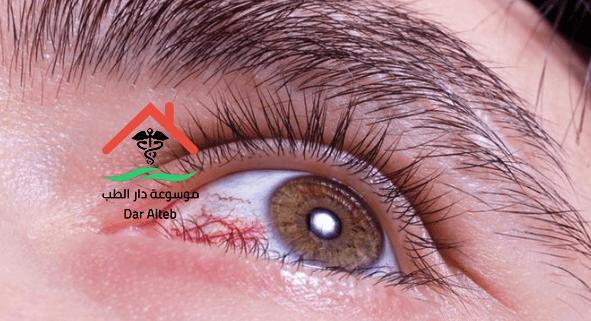 Photo of الذبابة الطائرة في العين وطرق علاجها