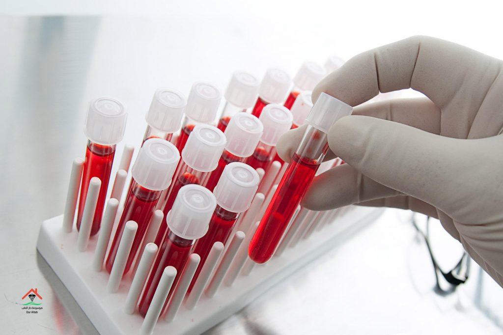 تحليل سيولة الدم