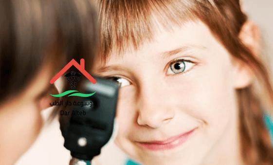 زغللة العين اسبابها وعلاجها