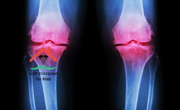 علاج خشونة الركبة بالأعشاب للدكتور عبد الباسط السيد