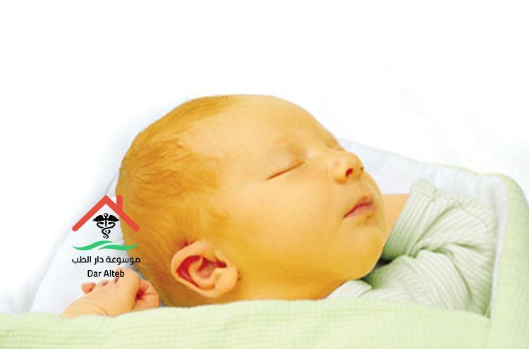 علاج الصفراء عند الاطفال حديثي الولادة بالأعشاب