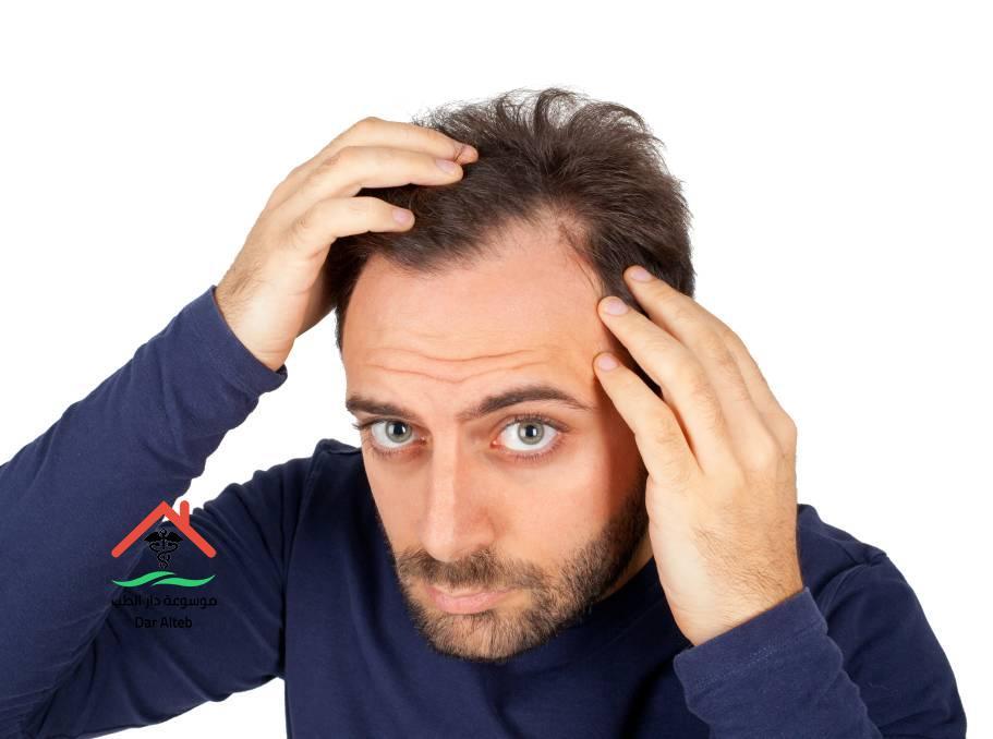 Photo of علاج تساقط الشعر بالأعشاب بوصفات طبيعية مجربة ومضمونة