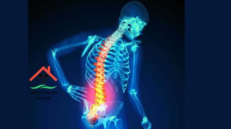 Photo of علاج هشاشة العظام بالأعشاب بوصفات عشبية بأقل تكلفة وأكبر فاعلية