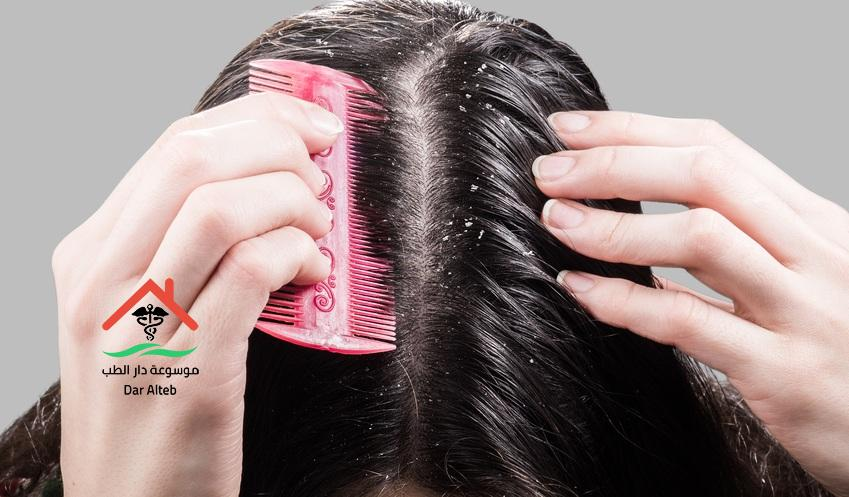 علاج قشرة الشعر المزمنة