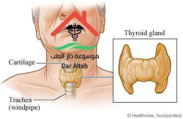 الأمراض الناتجة عن فرط الغدة الدرقية