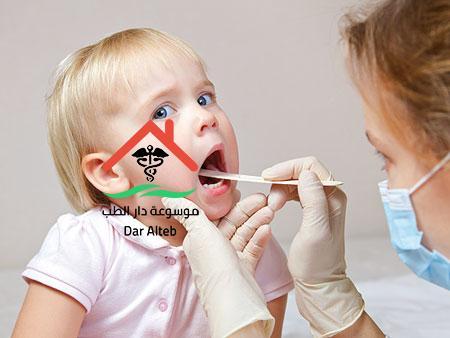 الغدد الليمفاوية عند الاطفال