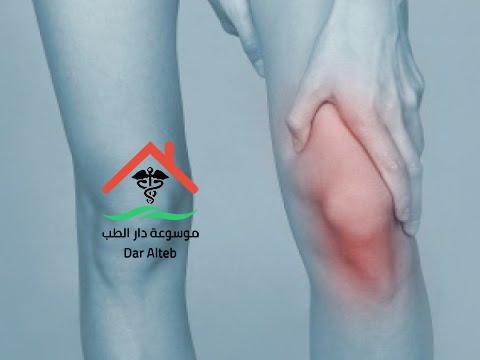 Photo of تسوس العظام اعراضه وعلاجه