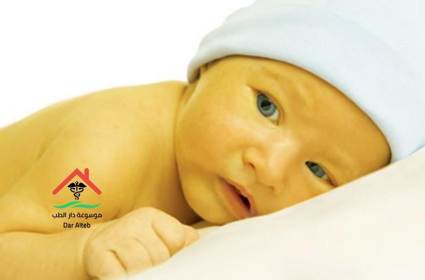 Photo of علاج الصفراء عند الاطفال حديثي الولادة بالأعشاب
