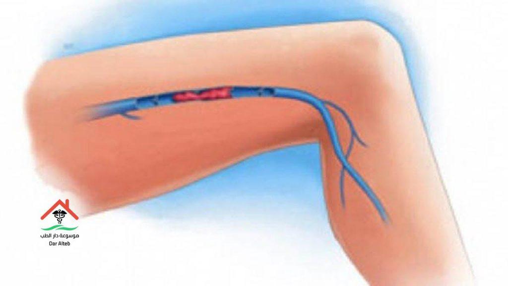 Photo of جلطة الساق السطحية وما هي أعراضها وطرق علاجها