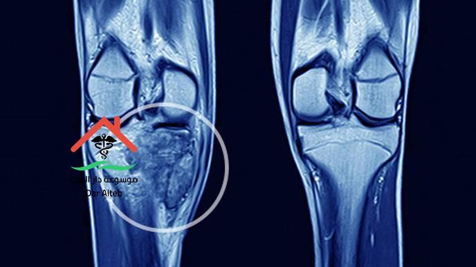 Photo of أعراض سرطان العظام ومعلومات هامة عن المرض ستعرفها لأول مرة
