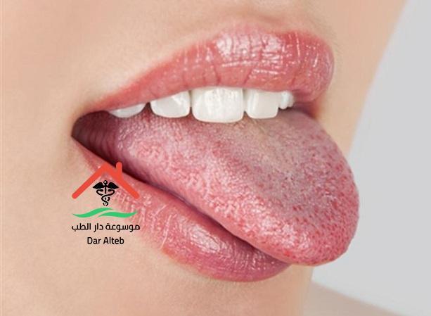 Photo of فطر الكانديدا اعراض الاصابة به واهم اسبابه والعلاج