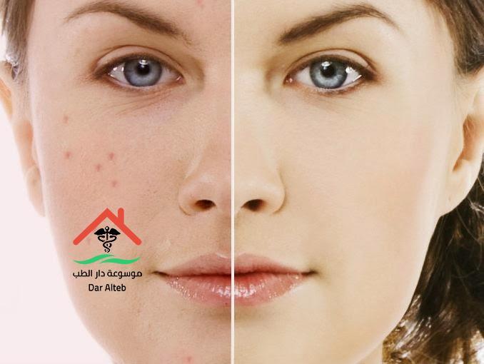 Photo of علاج الندبات في الوجه والتخلص منها نهائياً