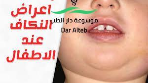Photo of ابو اللكيم وطريقة التعامل معه والعلاج الصحيح