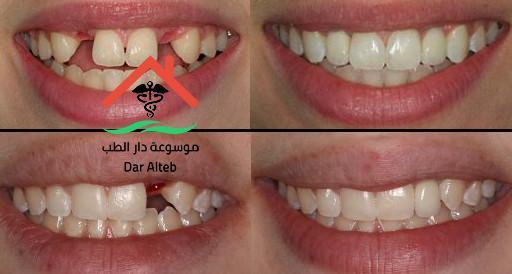 أنواع زراعة الاسنان وأهم تفاصيلها