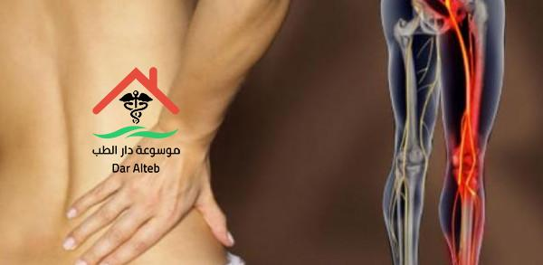 Photo of اعراض عرق النسا وطرق العلاج
