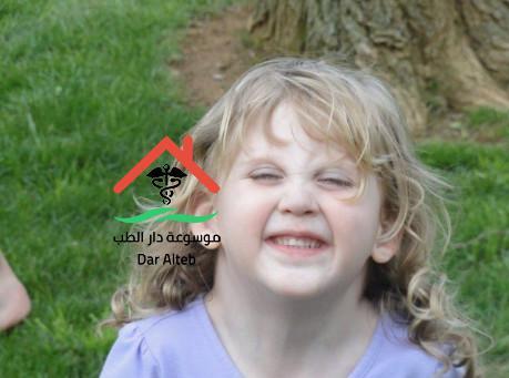 Photo of متلازمة تيرنر xo أسبابها، أعراضها وكيفية علاجها