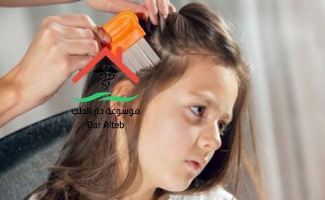 مرض الثعلبة عند الأطفال اعراضه وطرق العلاج