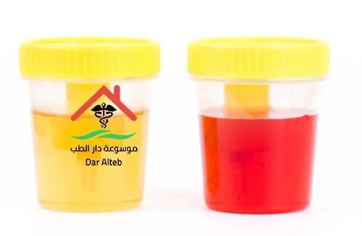 Photo of لون البول ودلالاته المرضية
