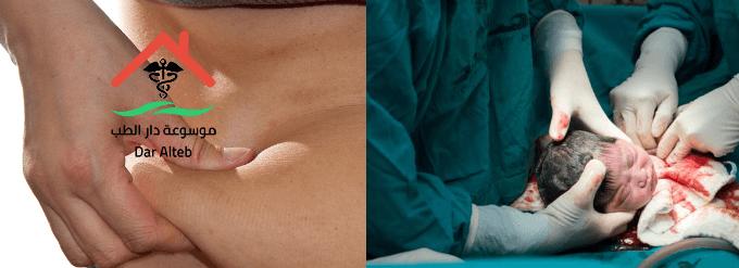 الولادة القيصرية والكرش