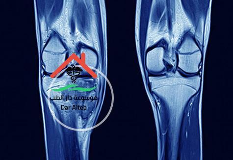 اعراض سرطان العظام وطرق التعامل معه