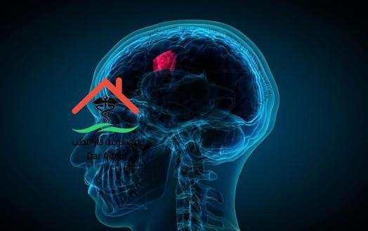 اعراض ورم المخ وطرق العلاج