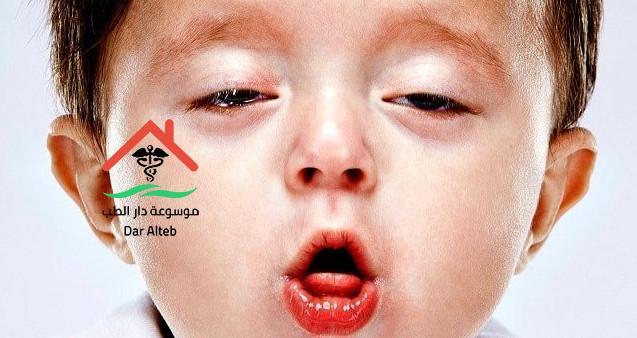 Photo of تشخيص السعال الديكي وطرق العلاج