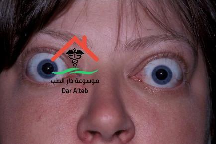 Photo of علاج جحوظ العين