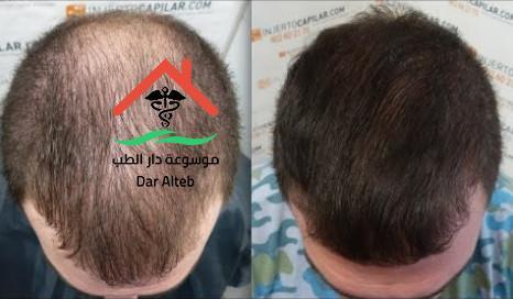 تساقط الشعر عند الرجال الاسباب والعلاج