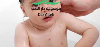 Photo of اعراض الجدري وطرق العلاج